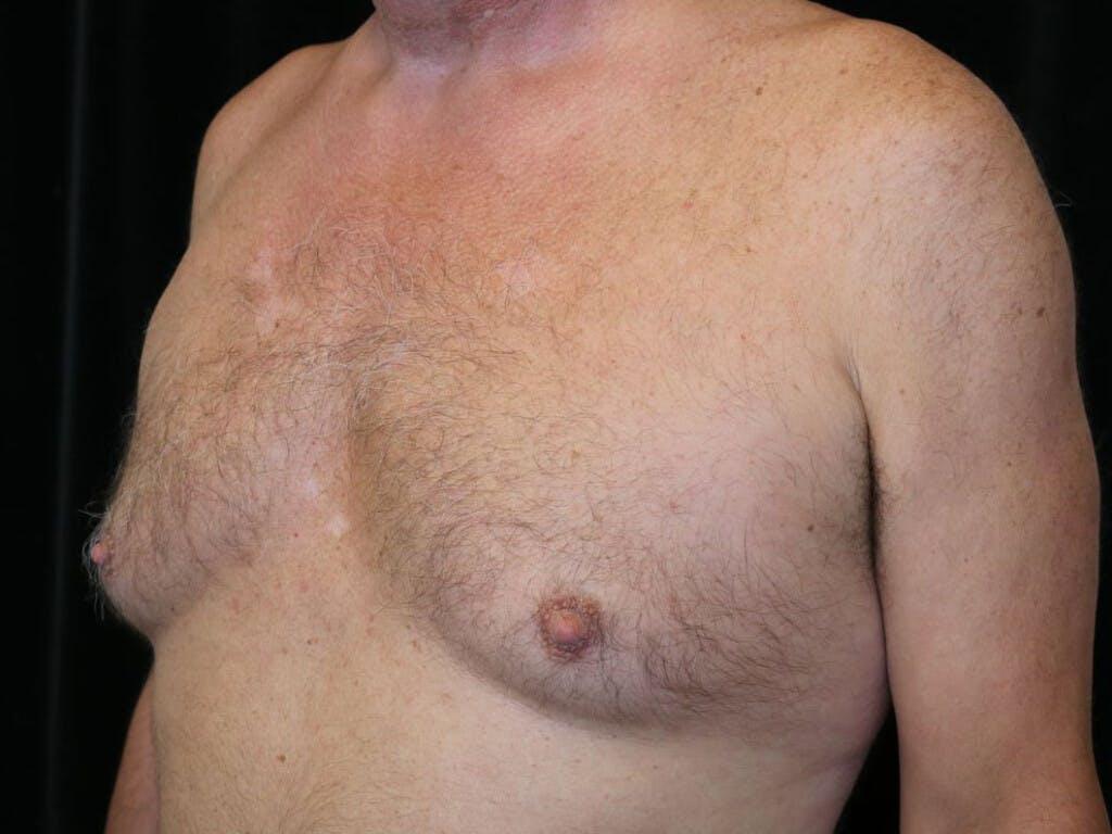 Gynecomastia Gallery - Patient 39352645 - Image 7
