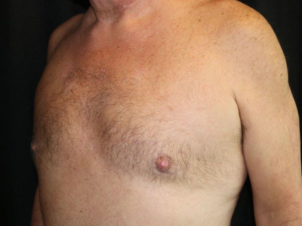 Gynecomastia Gallery - Patient 39352645 - Image 8