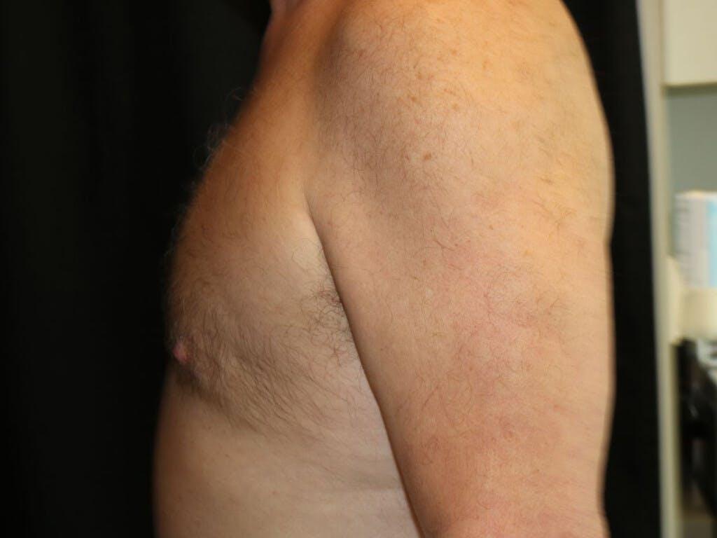 Gynecomastia Gallery - Patient 39352645 - Image 10
