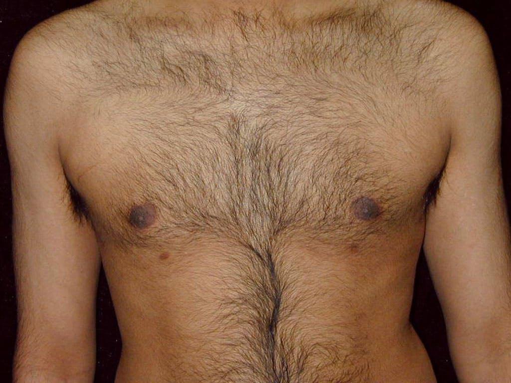Gynecomastia Gallery - Patient 39352649 - Image 2