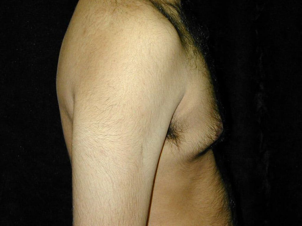 Gynecomastia Gallery - Patient 39352649 - Image 3