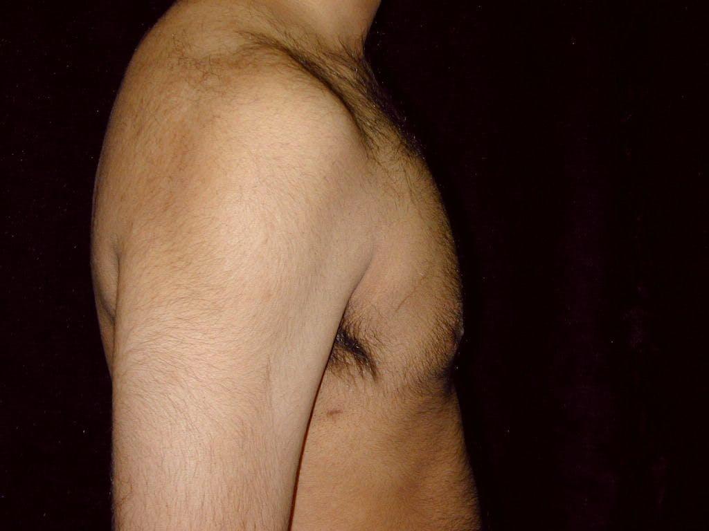 Gynecomastia Gallery - Patient 39352649 - Image 4