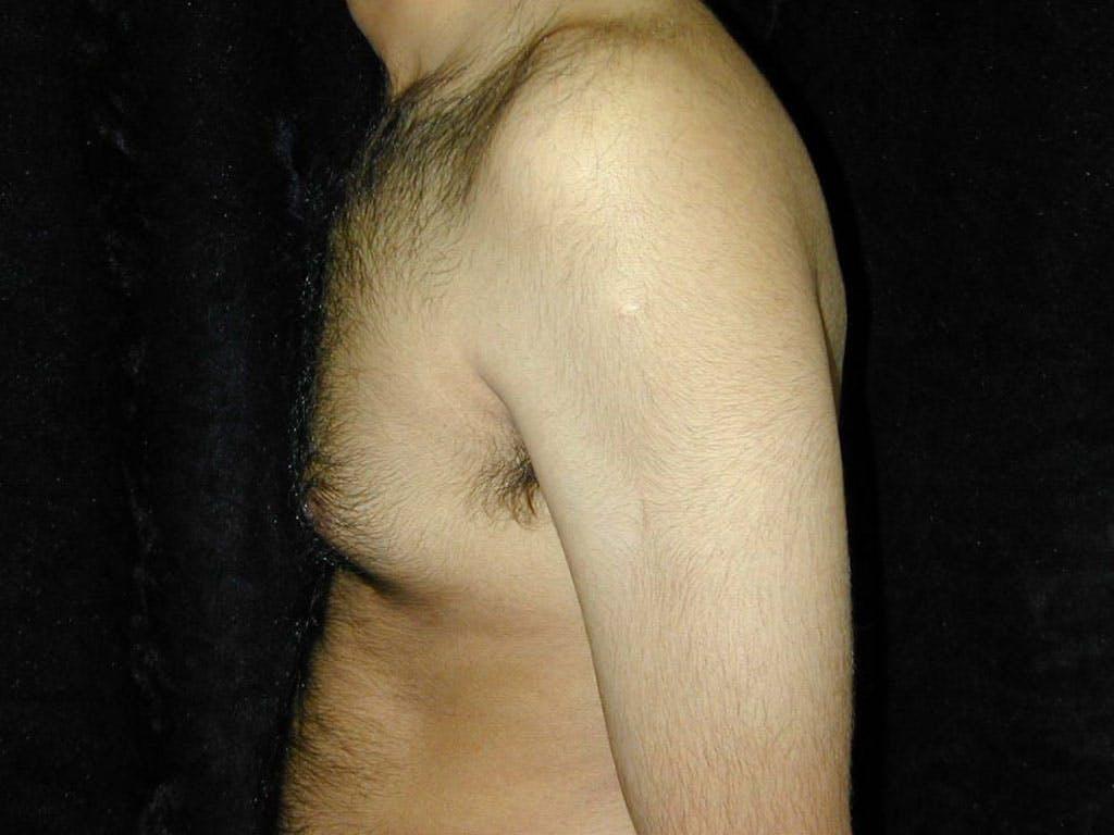 Gynecomastia Gallery - Patient 39352649 - Image 5