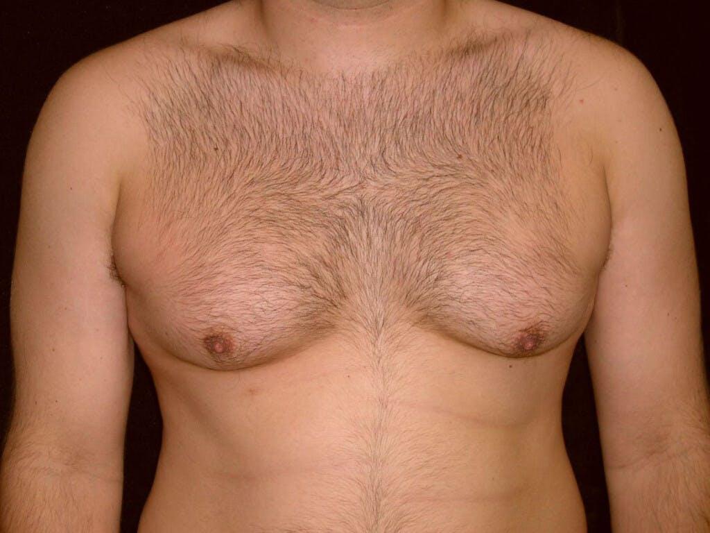 Gynecomastia Gallery - Patient 39352662 - Image 1