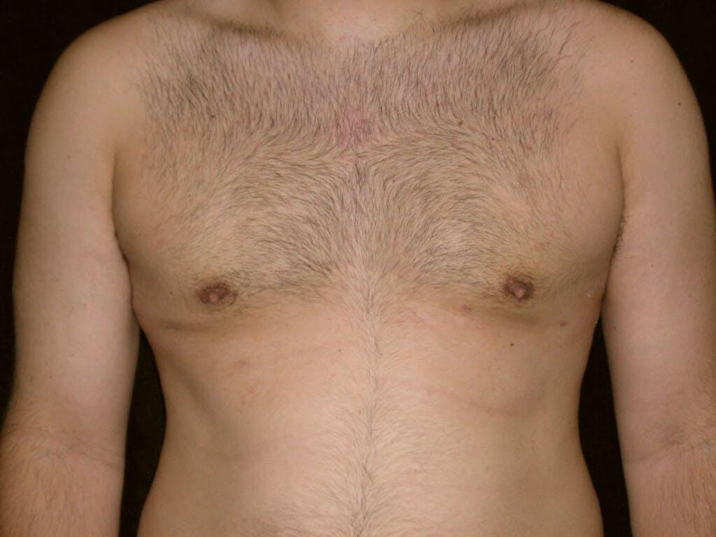 Gynecomastia Gallery - Patient 39352662 - Image 2