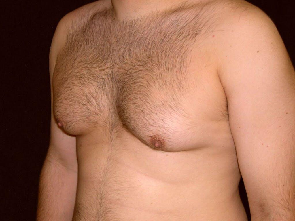 Gynecomastia Gallery - Patient 39352662 - Image 7