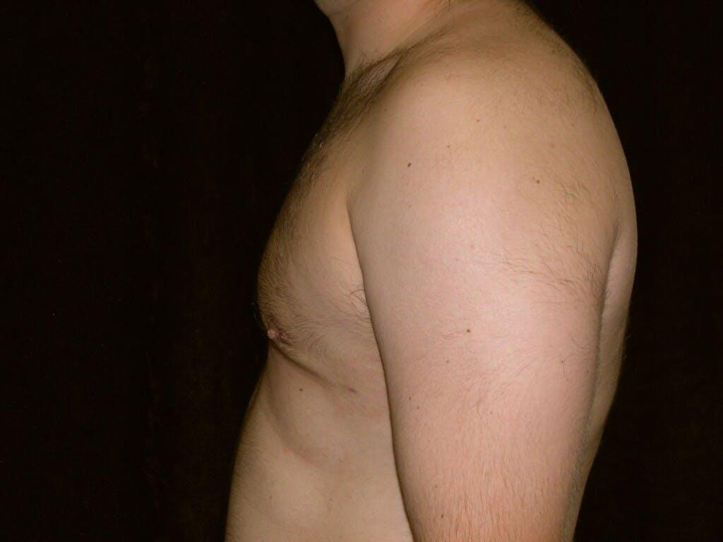 Gynecomastia Gallery - Patient 39352662 - Image 10