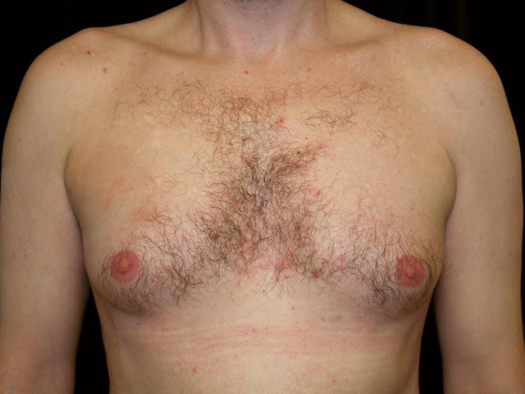 Gynecomastia Gallery - Patient 39352670 - Image 1