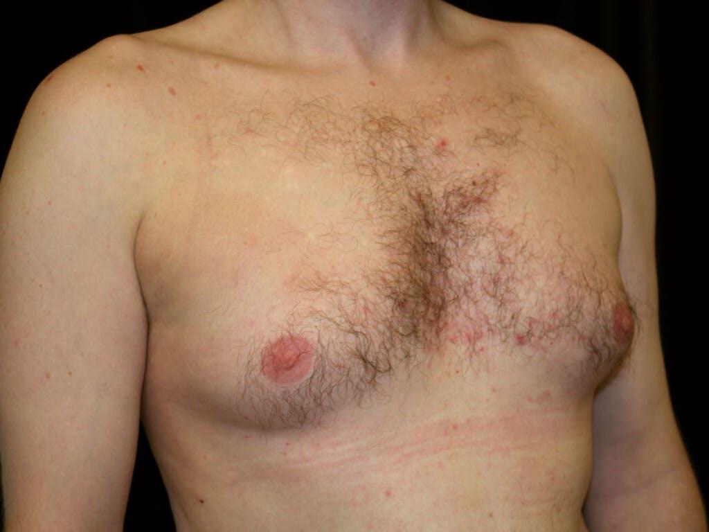 Gynecomastia Gallery - Patient 39352670 - Image 3