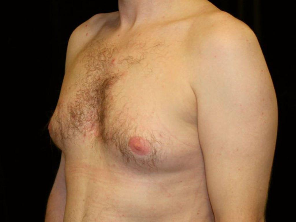 Gynecomastia Gallery - Patient 39352670 - Image 5