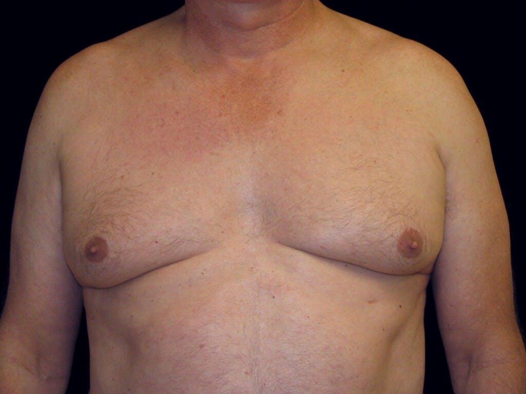 Gynecomastia Gallery - Patient 39352672 - Image 1
