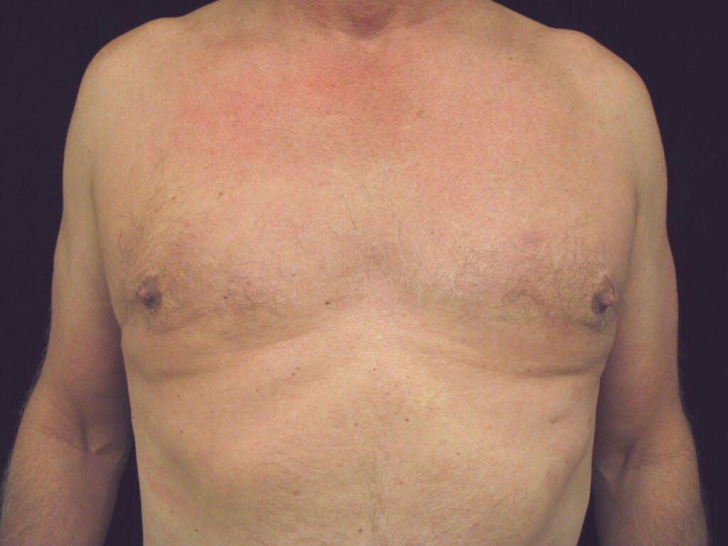 Gynecomastia Gallery - Patient 39352672 - Image 2