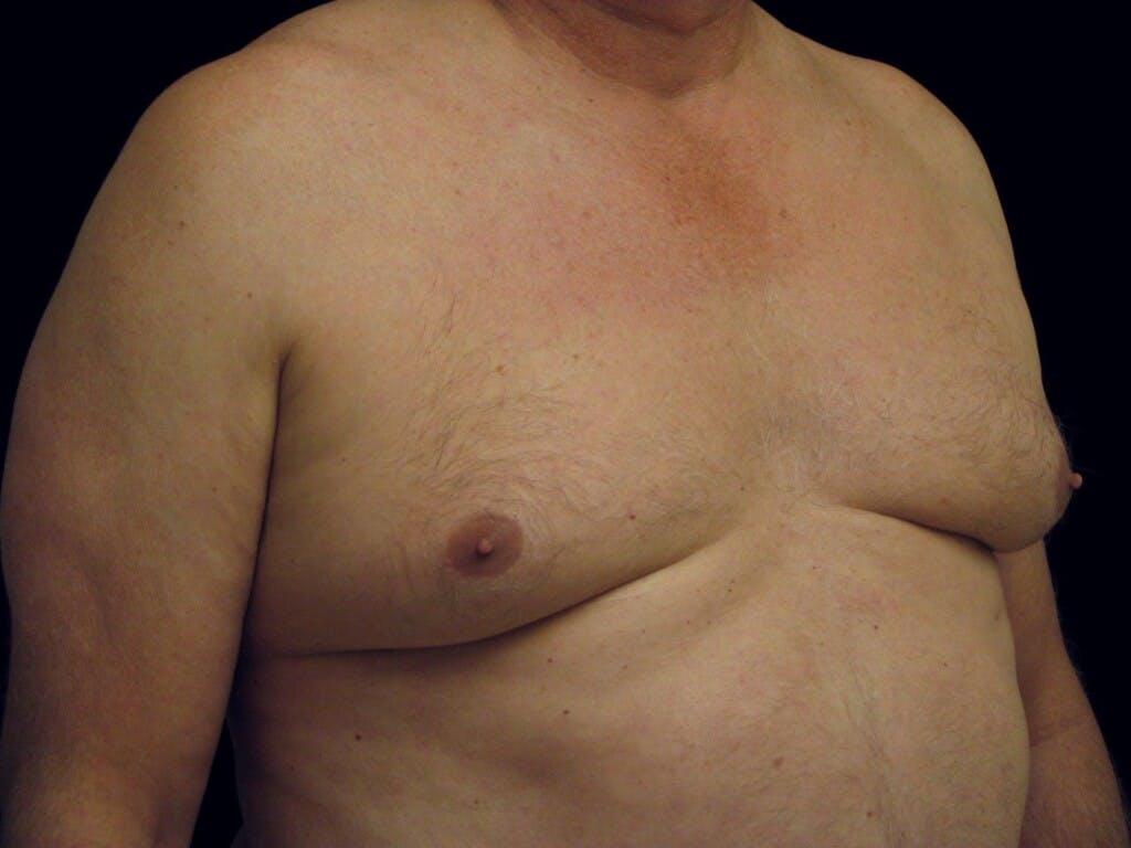 Gynecomastia Gallery - Patient 39352672 - Image 3