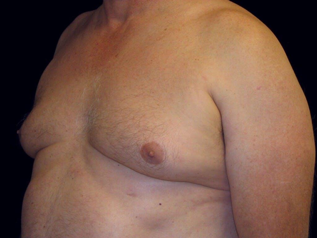 Gynecomastia Gallery - Patient 39352672 - Image 7