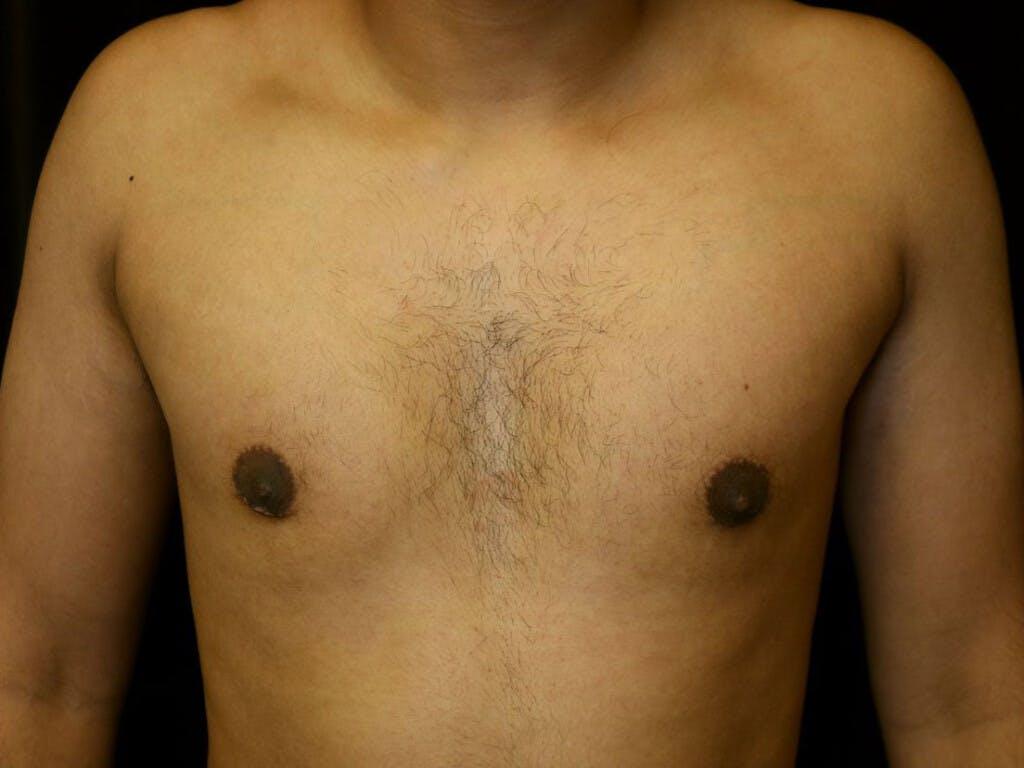 Gynecomastia Gallery - Patient 39352690 - Image 2