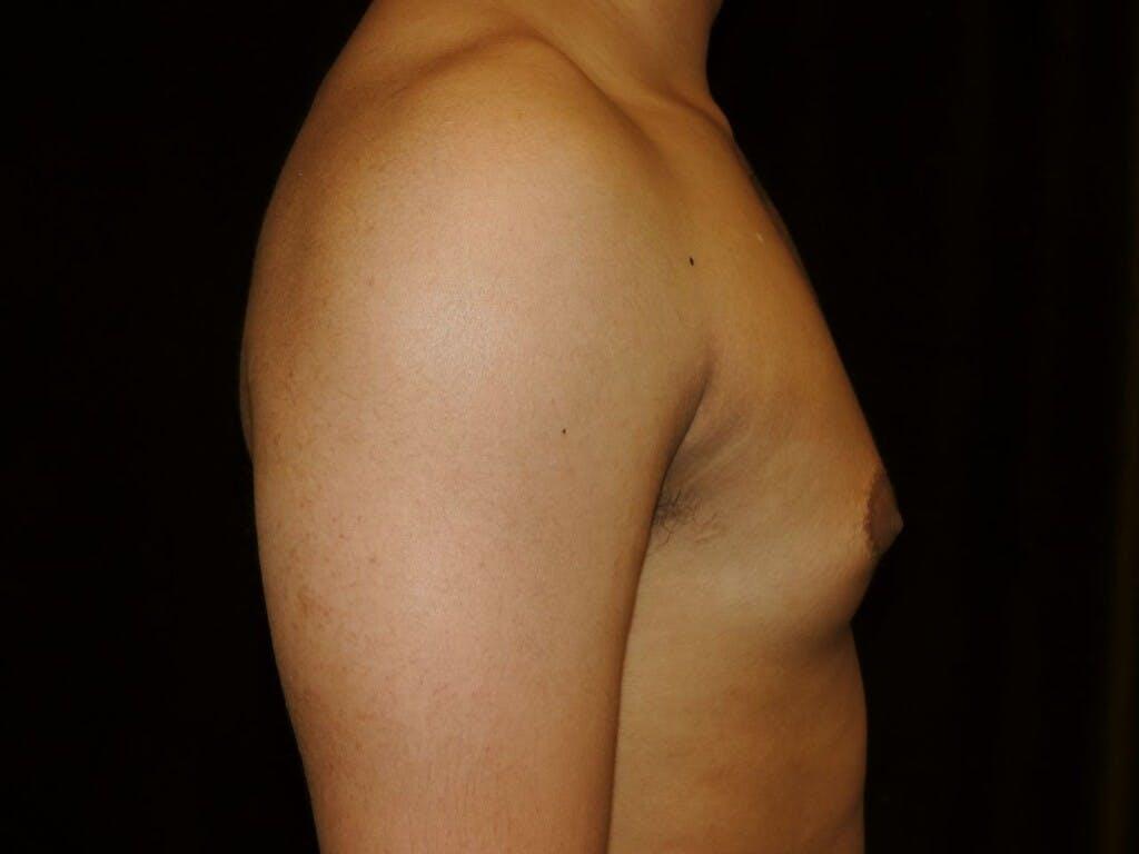Gynecomastia Gallery - Patient 39352690 - Image 5