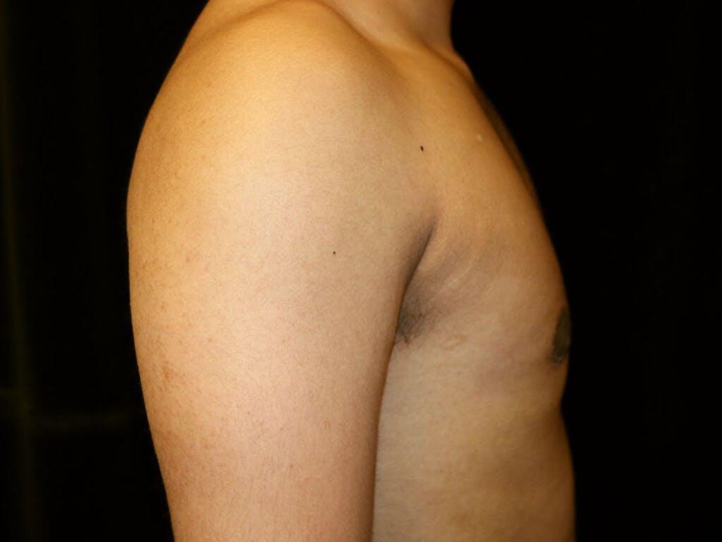 Gynecomastia Gallery - Patient 39352690 - Image 6