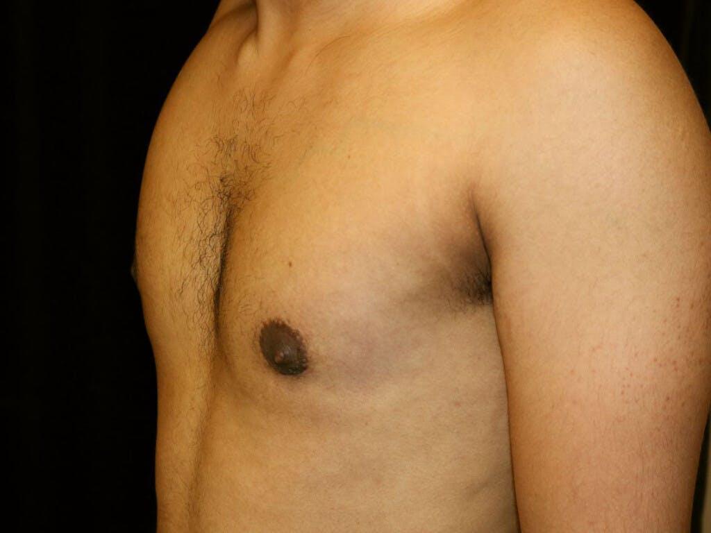 Gynecomastia Gallery - Patient 39352690 - Image 8