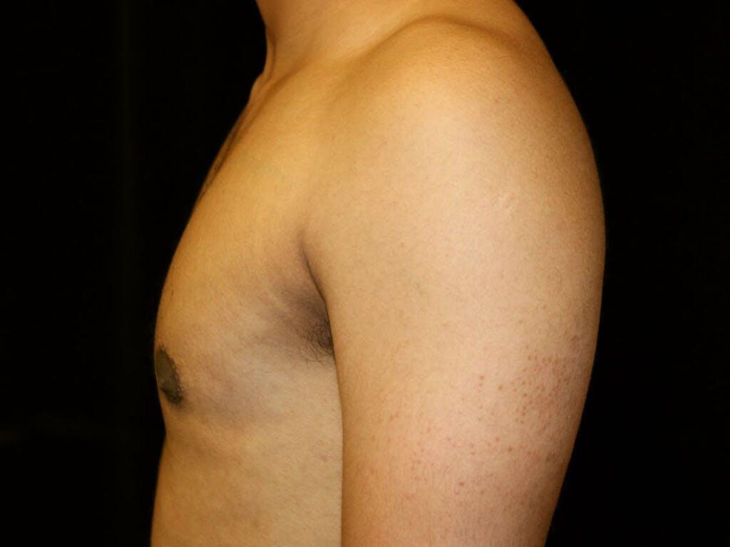 Gynecomastia Gallery - Patient 39352690 - Image 10