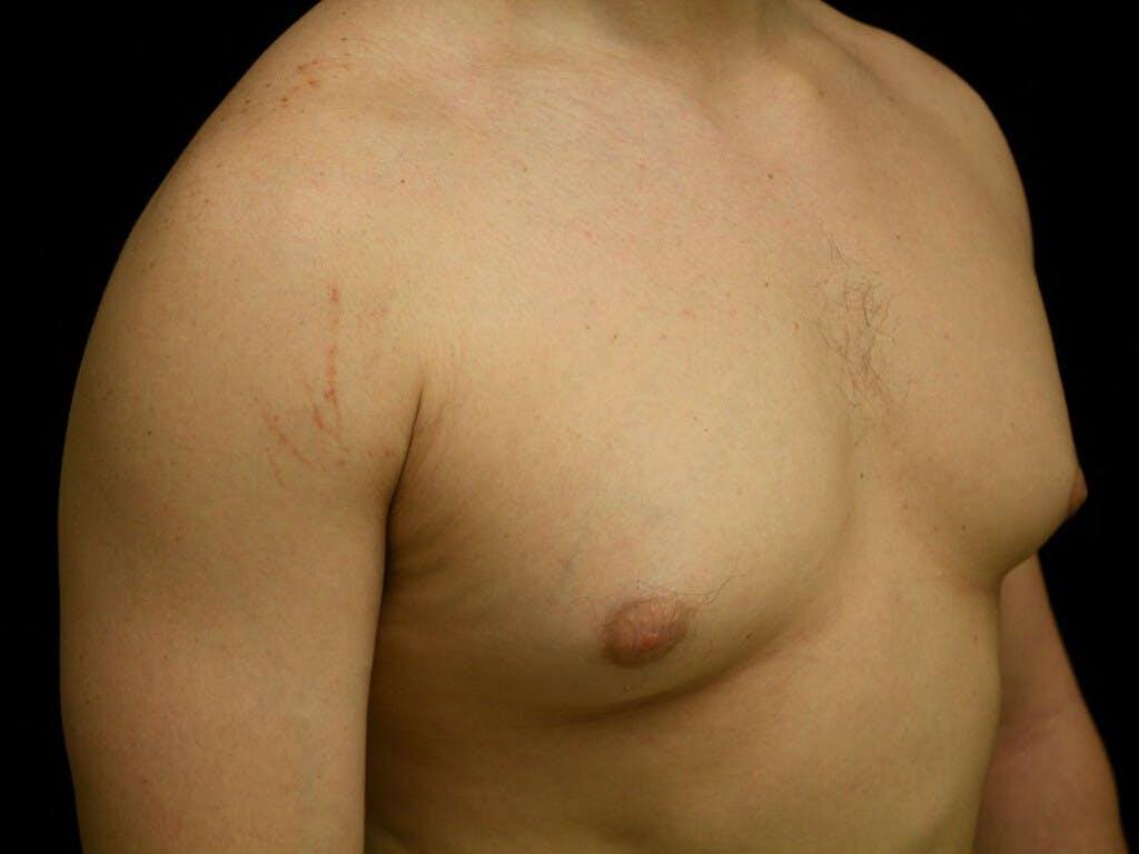 Gynecomastia Gallery - Patient 39352720 - Image 1
