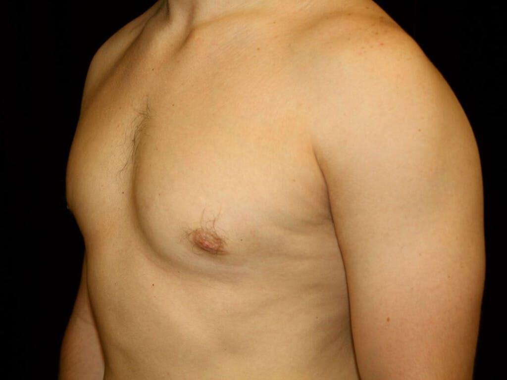 Gynecomastia Gallery - Patient 39352720 - Image 4