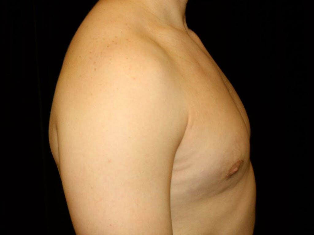 Gynecomastia Gallery - Patient 39352720 - Image 6