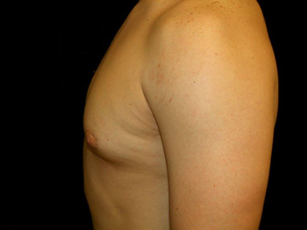 Gynecomastia Gallery - Patient 39352720 - Image 7
