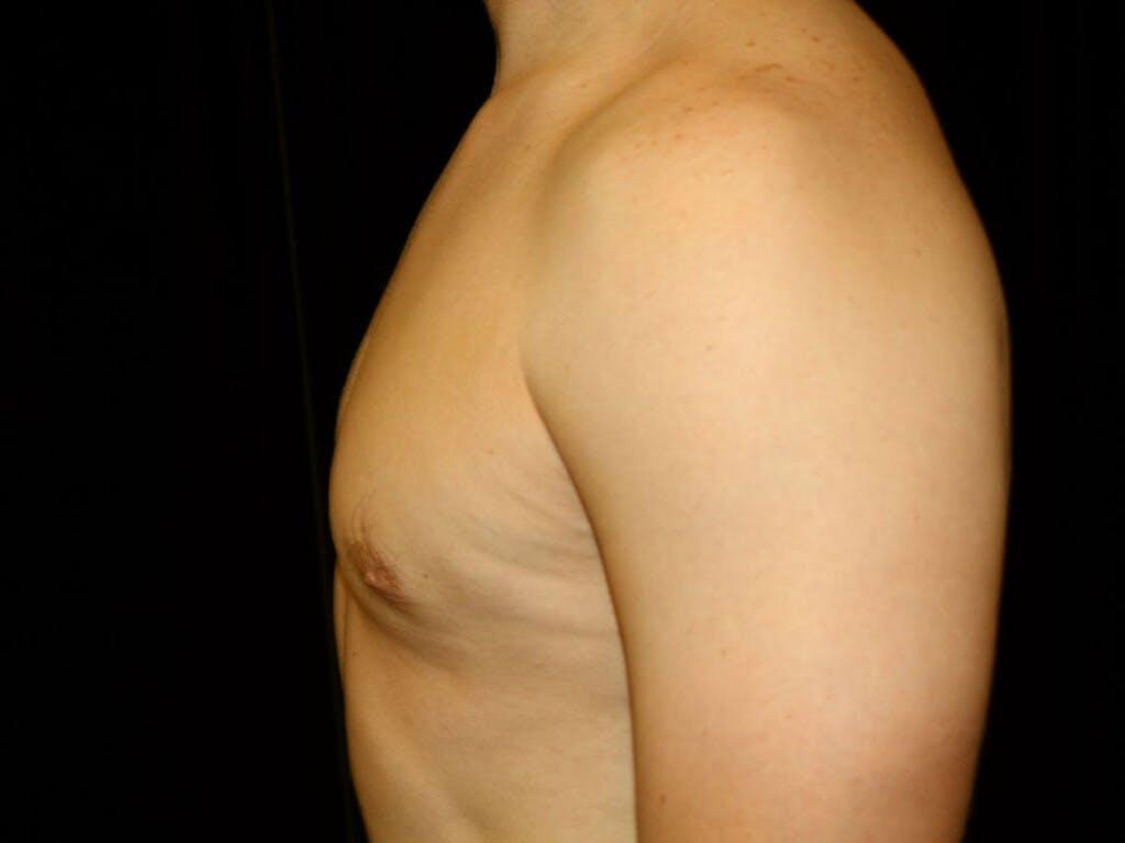 Gynecomastia Gallery - Patient 39352720 - Image 8
