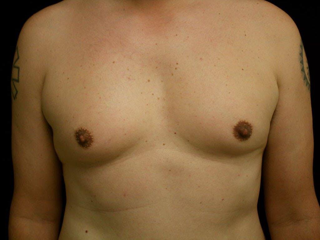 Gynecomastia Gallery - Patient 39352728 - Image 1