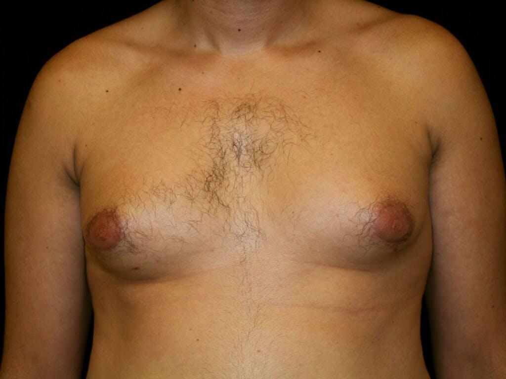 Gynecomastia Gallery - Patient 39352732 - Image 1