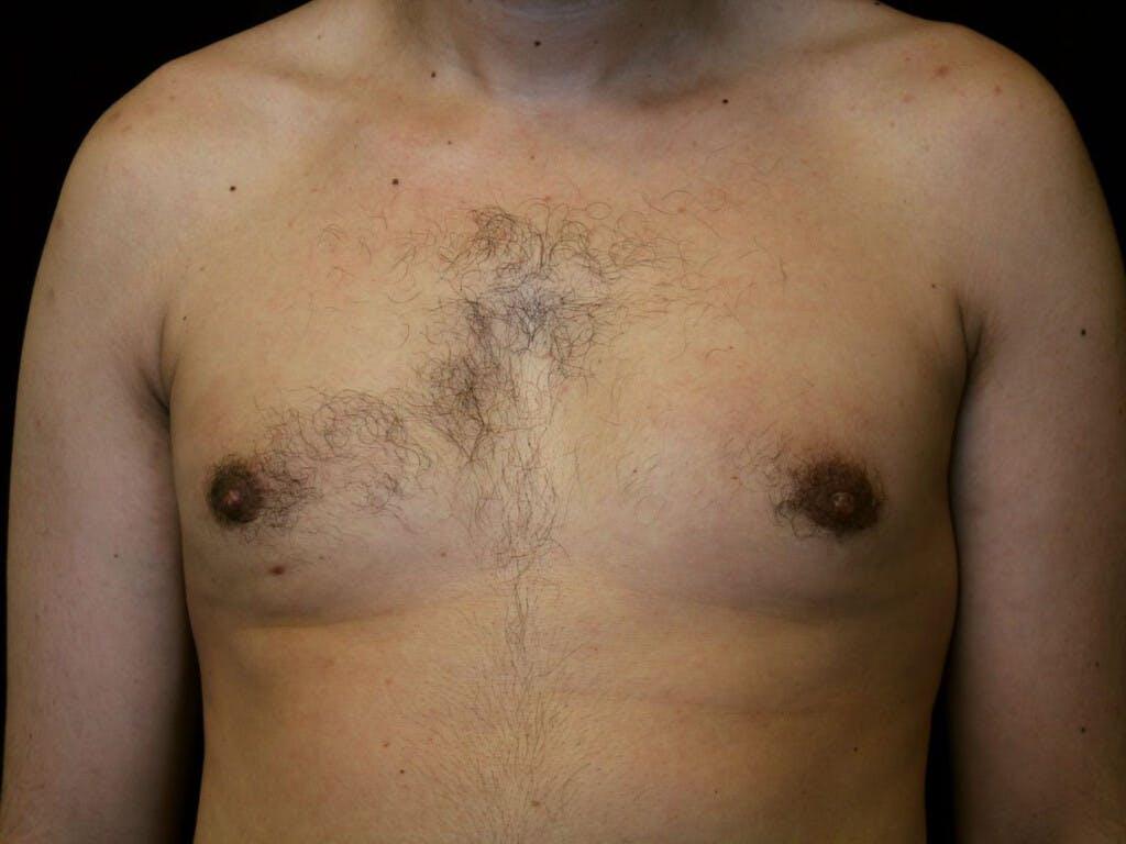 Gynecomastia Gallery - Patient 39352732 - Image 2