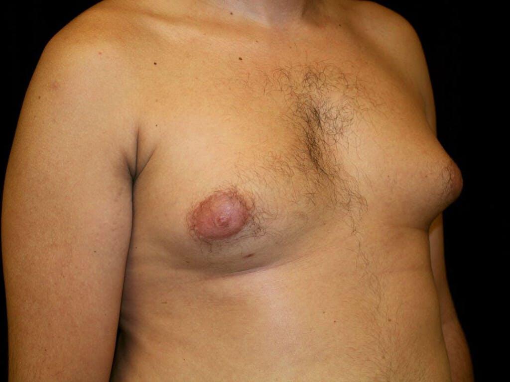 Gynecomastia Gallery - Patient 39352732 - Image 3