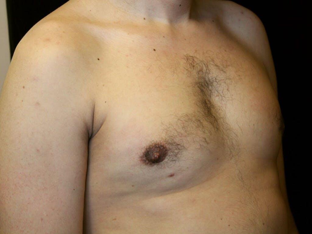 Gynecomastia Gallery - Patient 39352732 - Image 4