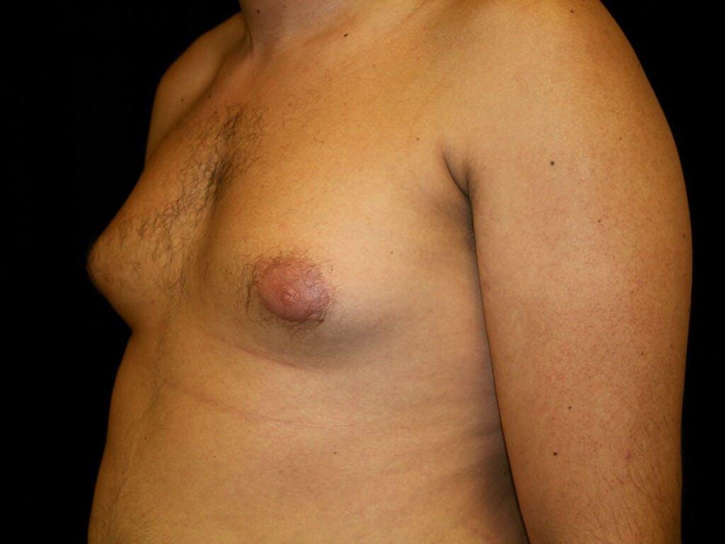 Gynecomastia Gallery - Patient 39352732 - Image 5