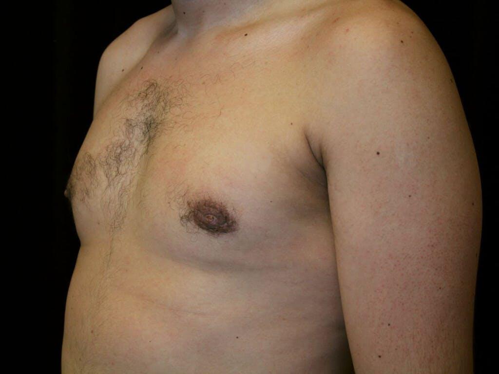 Gynecomastia Gallery - Patient 39352732 - Image 6