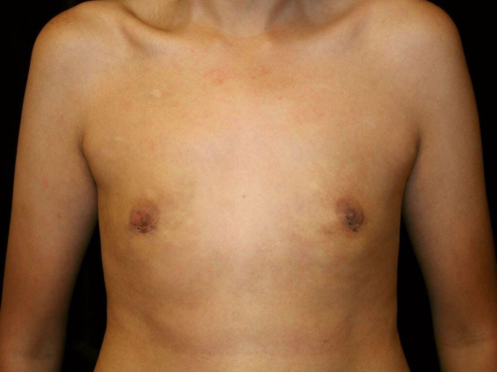 Gynecomastia Gallery - Patient 39352736 - Image 2