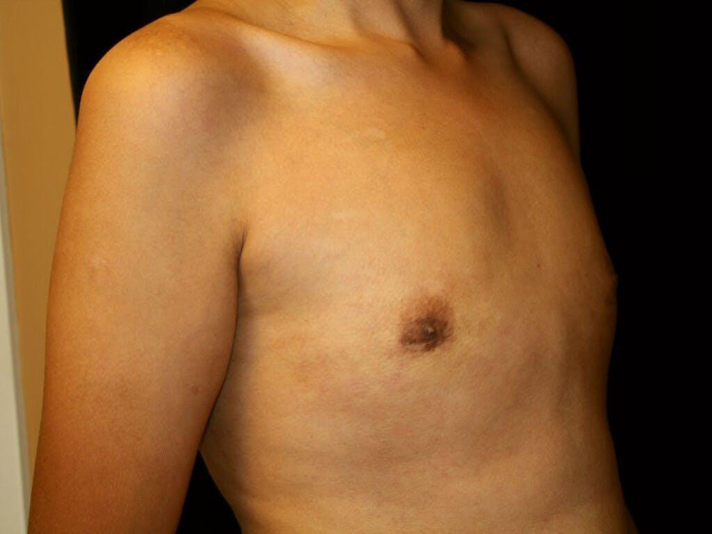 Gynecomastia Gallery - Patient 39352736 - Image 4