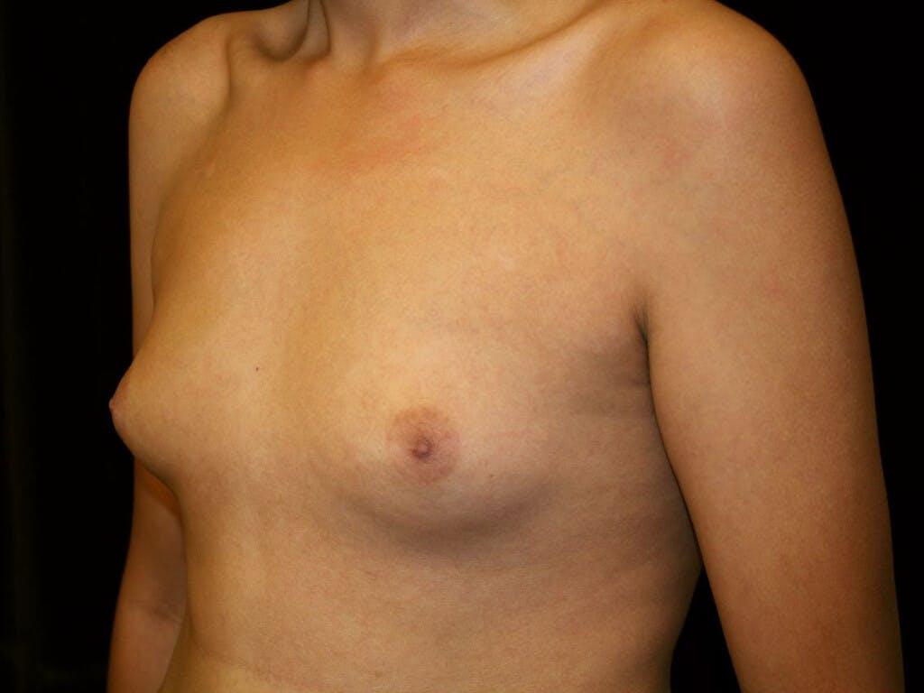 Gynecomastia Gallery - Patient 39352736 - Image 5