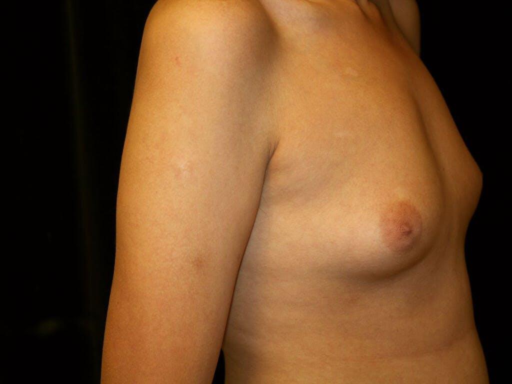 Gynecomastia Gallery - Patient 39352736 - Image 7