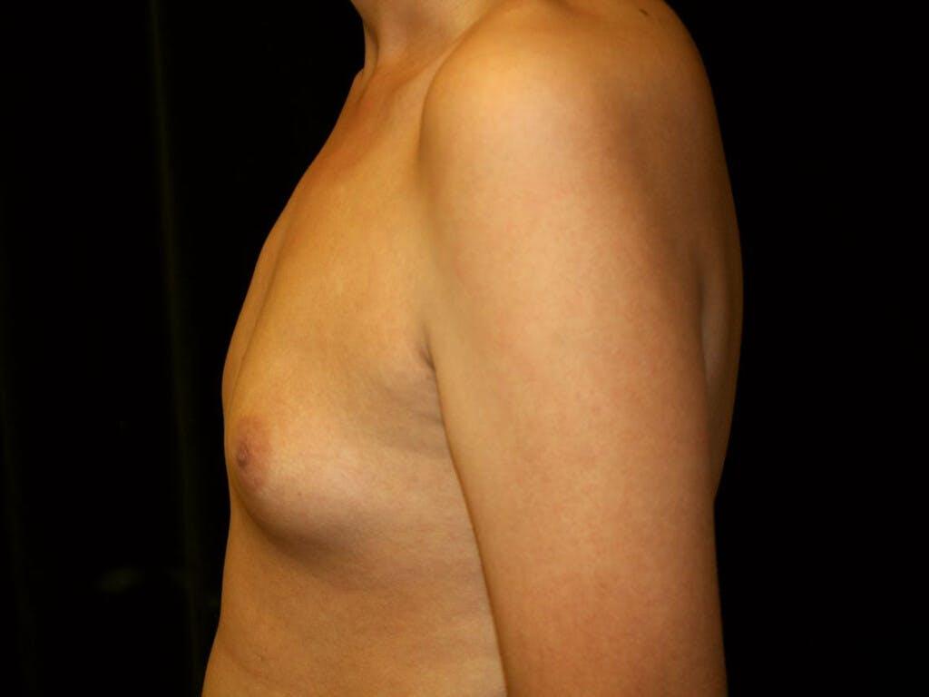 Gynecomastia Gallery - Patient 39352736 - Image 9
