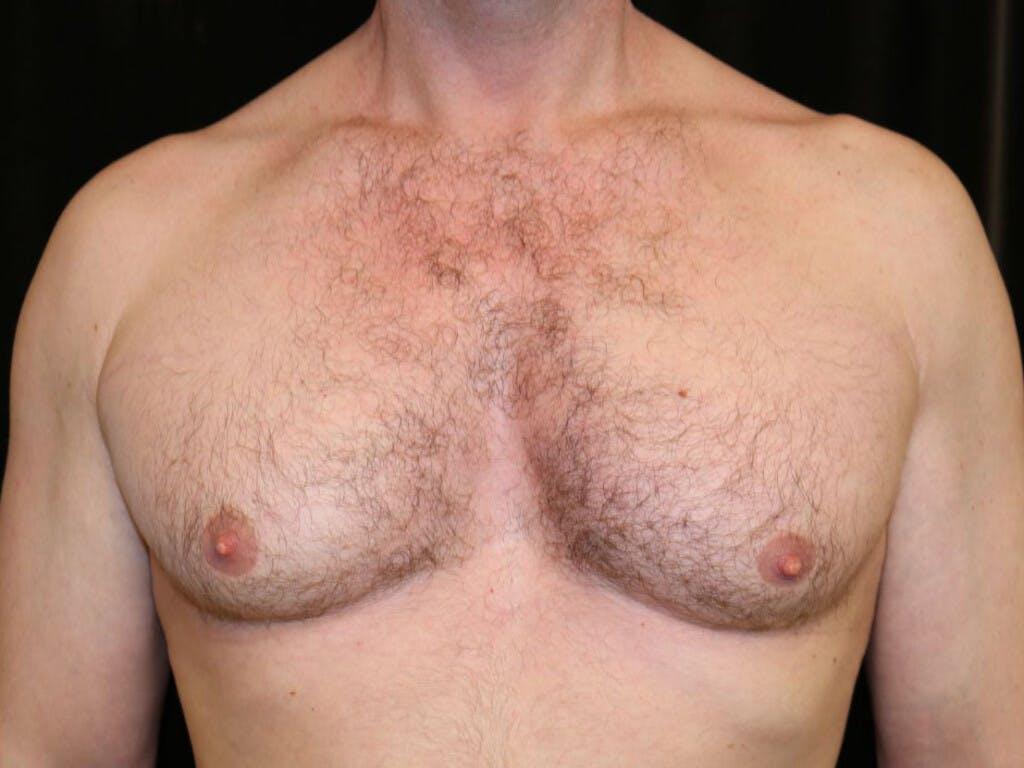 Gynecomastia Gallery - Patient 39352737 - Image 1