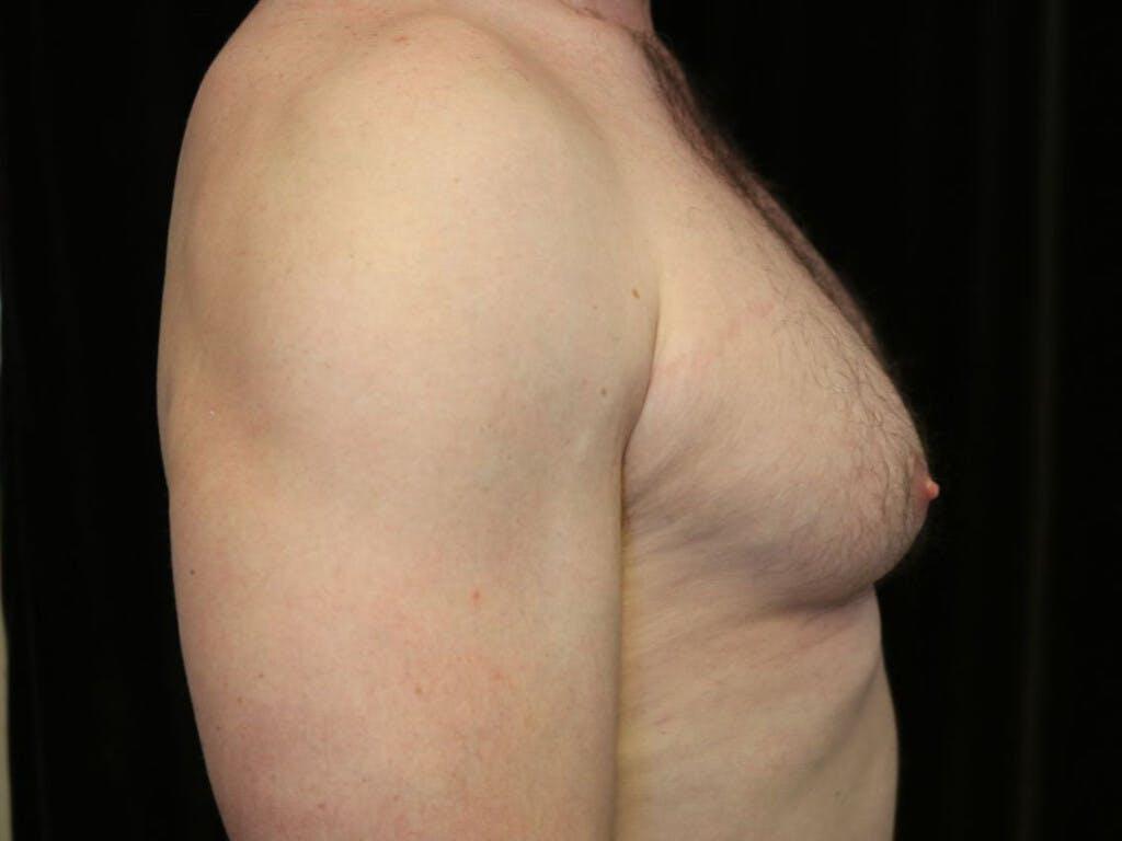 Gynecomastia Gallery - Patient 39352737 - Image 5