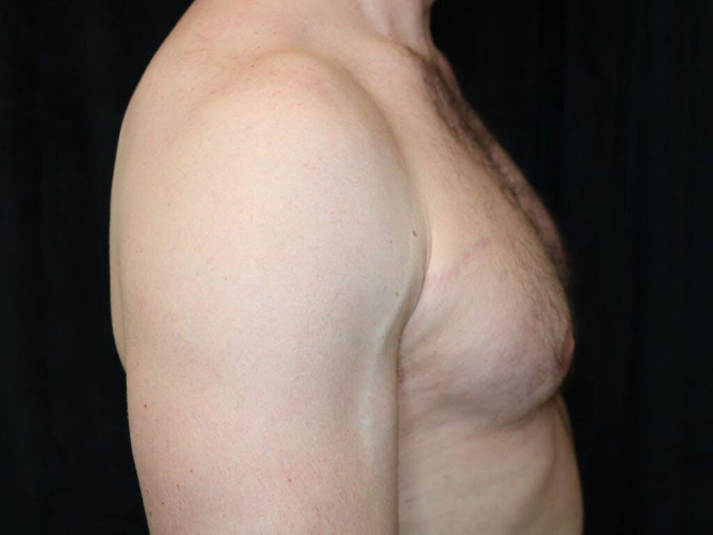 Gynecomastia Gallery - Patient 39352737 - Image 6