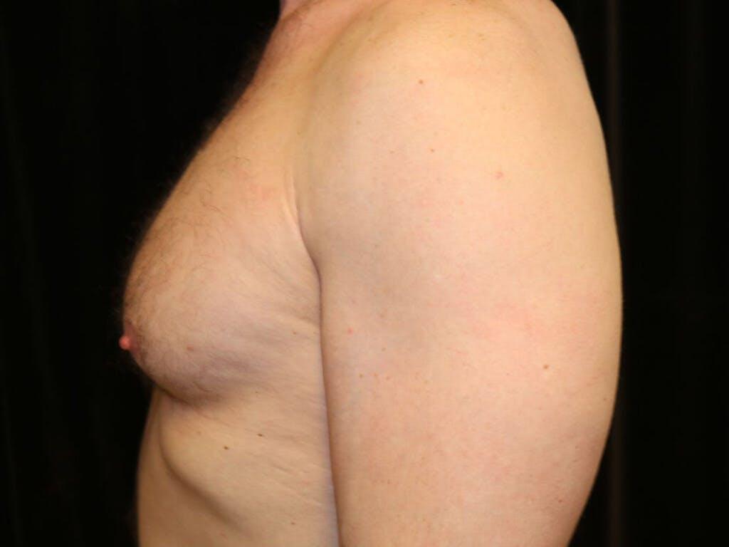 Gynecomastia Gallery - Patient 39352737 - Image 9