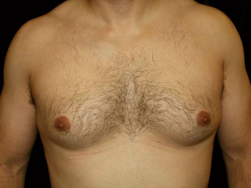 Gynecomastia Gallery - Patient 39352740 - Image 1