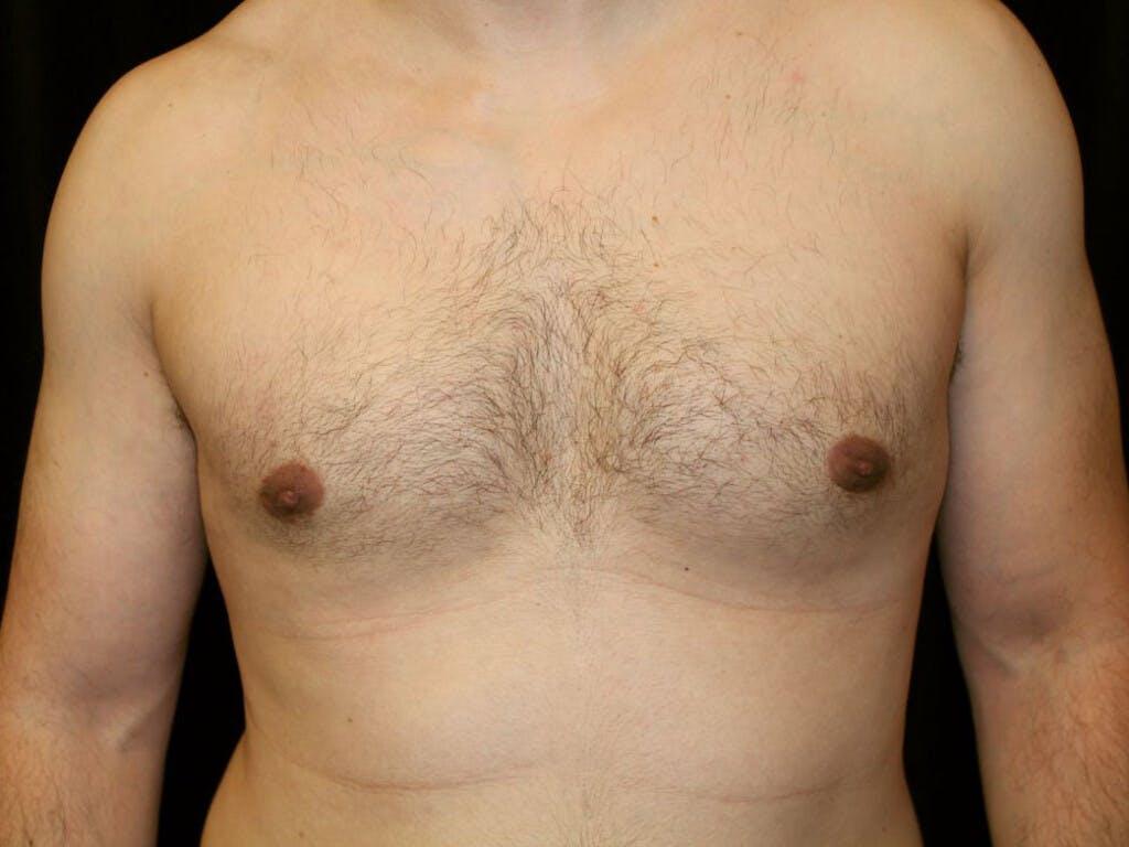 Gynecomastia Gallery - Patient 39352740 - Image 2