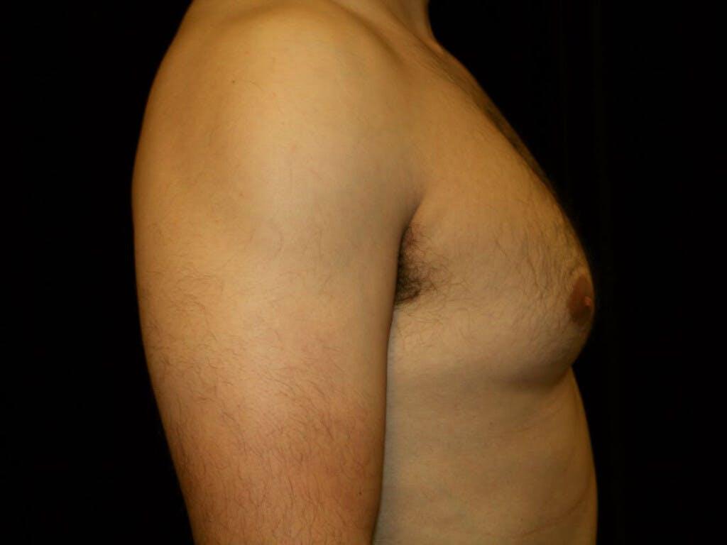 Gynecomastia Gallery - Patient 39352740 - Image 5