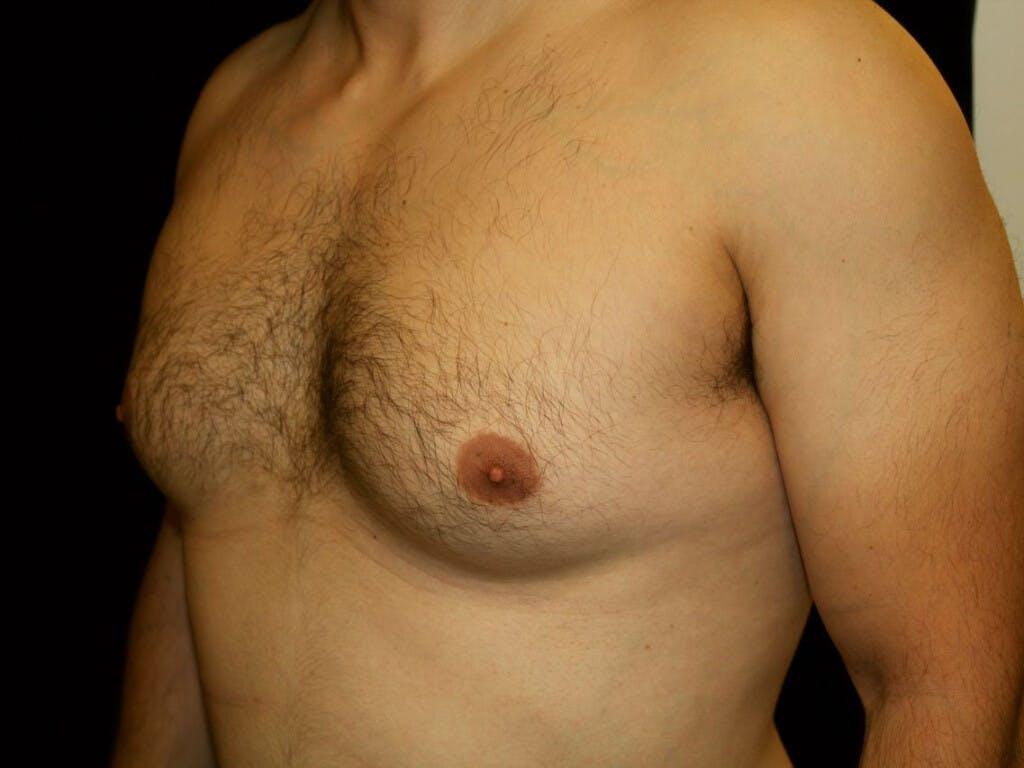 Gynecomastia Gallery - Patient 39352740 - Image 7