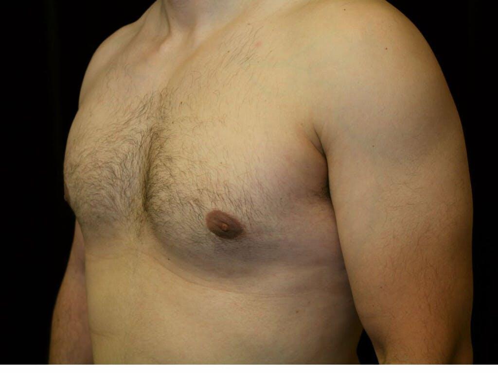 Gynecomastia Gallery - Patient 39352740 - Image 8