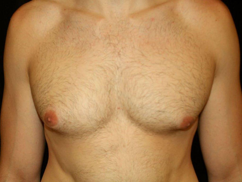 Gynecomastia Gallery - Patient 39352746 - Image 1